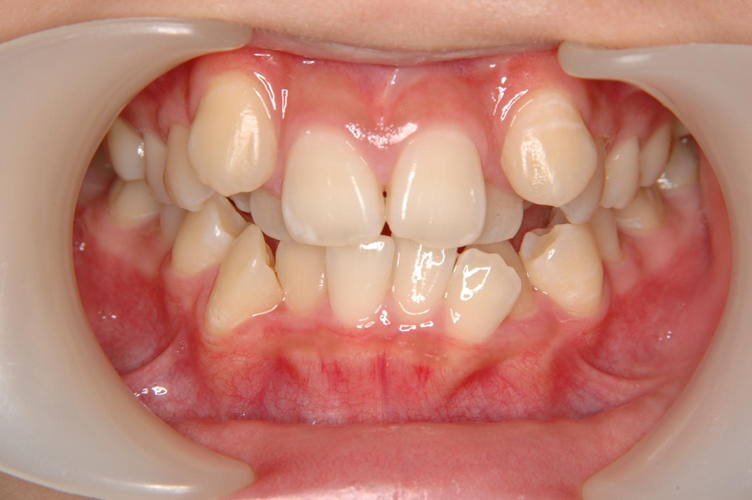 八重歯や出歯の治療は世田谷区の...