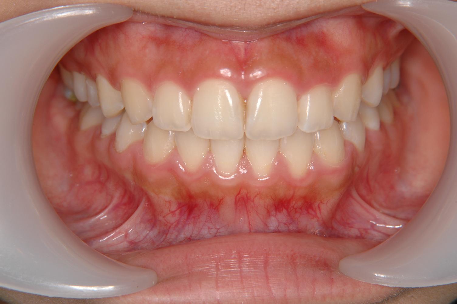 八重歯や出歯の治療は世田谷区の二子玉川矯正歯科