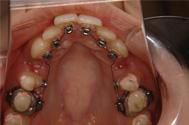 舌側矯正装置が歯の内側に装着されています。